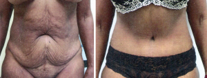 Liposuction/Tummy Tuck
